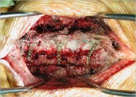 Low back pain and Lumbar